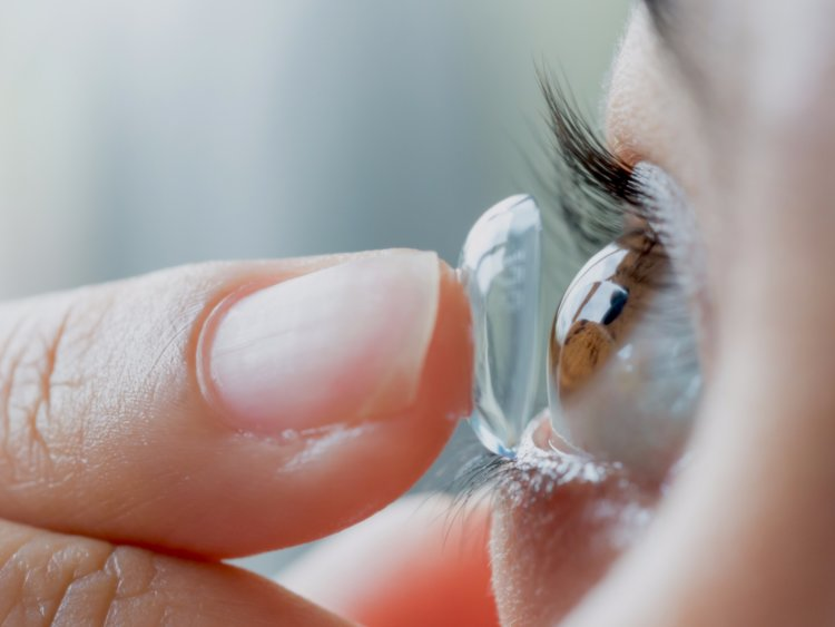 A Consumer's Struggle: Contact Lenses and Solutions